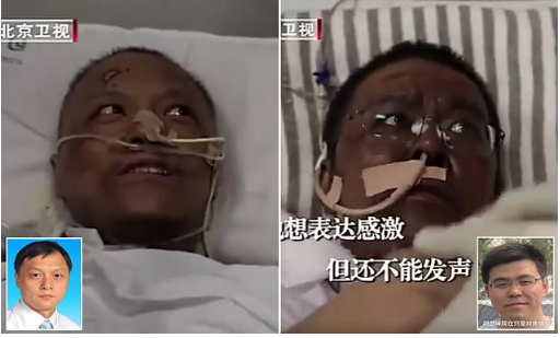 Chinese doctors who were critically ill with COVID-19 wake up to find that their skin has turned dark after the virus damaged their livers (photos)…