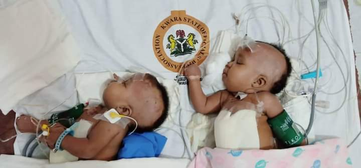 Nigerian Doctors Successfully Separate Conjoined Twins At UITH (Photos)