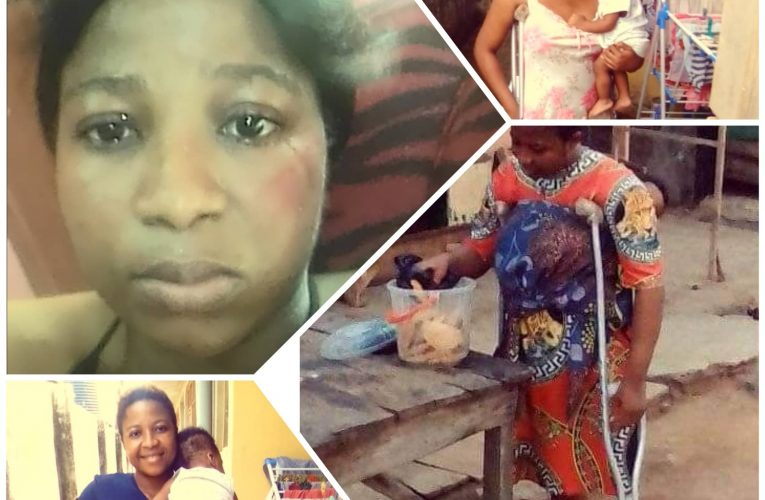 Man Batters Amputee Nursing Wife, Sends Her and Baby Away (Photos)…